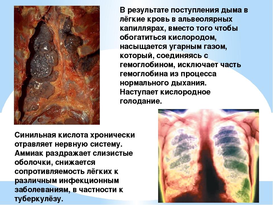 В результате поступления дыма в лёгкие кровь в альвеолярных капиллярах, вмест...
