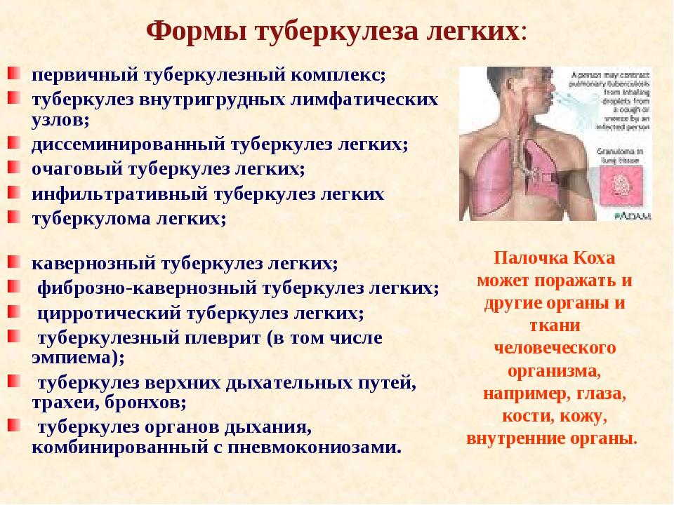 Формы туберкулеза легких: первичный туберкулезный комплекс; туберкулез внутри...