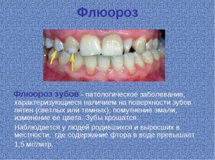 Флюороз Флюороз зубов – патологическое заболевание, характеризующиеся наличие
