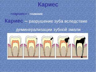 Кариес Кариес – разрушение зуба вследствие деминерализации зубной эмали «кари