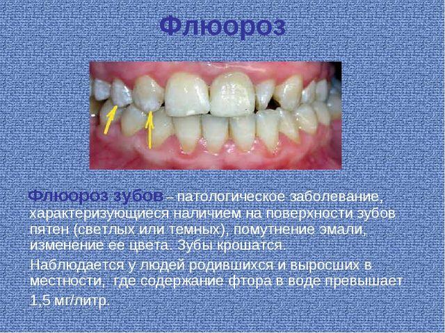 Флюороз Флюороз зубов – патологическое заболевание, характеризующиеся наличие...