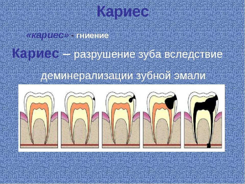 Кариес Кариес – разрушение зуба вследствие деминерализации зубной эмали «кари...