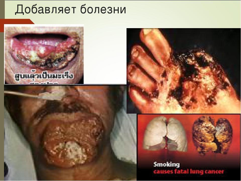 Добавляет болезни