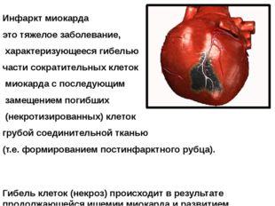 Инфаркт миокарда это тяжелое заболевание, характеризующееся гибелью части сок