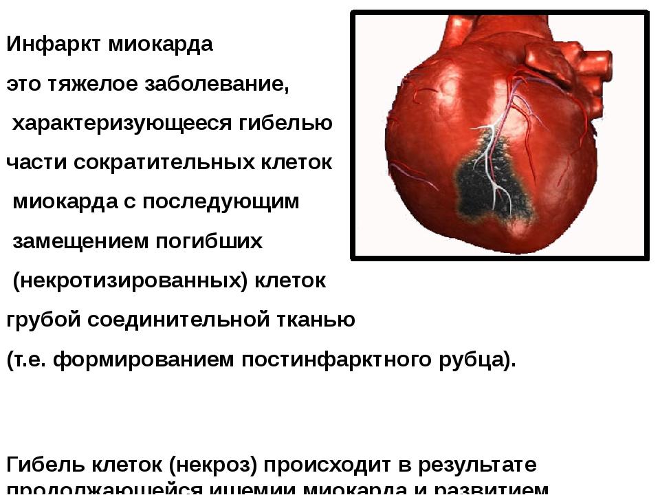 Инфаркт миокарда это тяжелое заболевание, характеризующееся гибелью части сок...