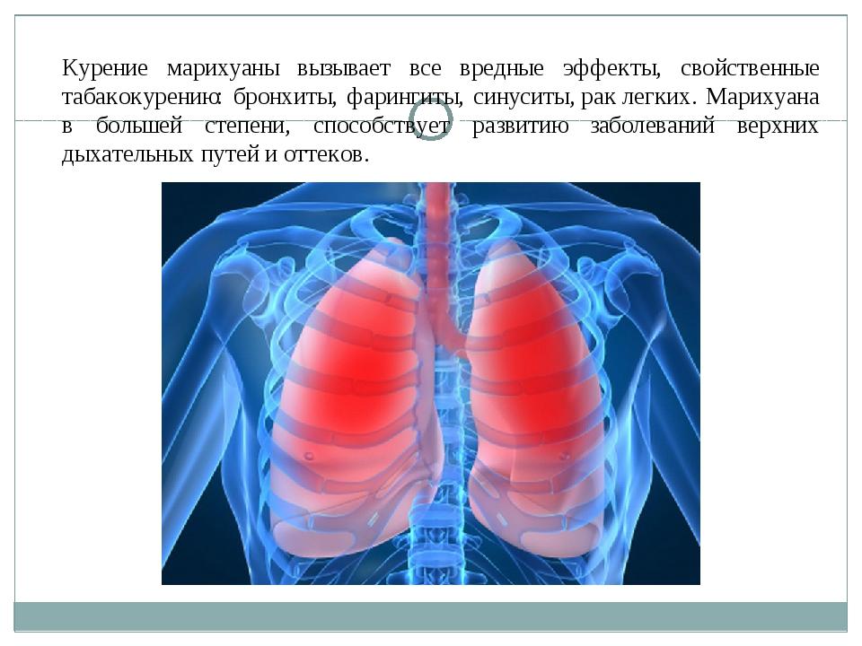 Курение марихуаны вызывает все вредные эффекты, свойственные табакокурению: б...