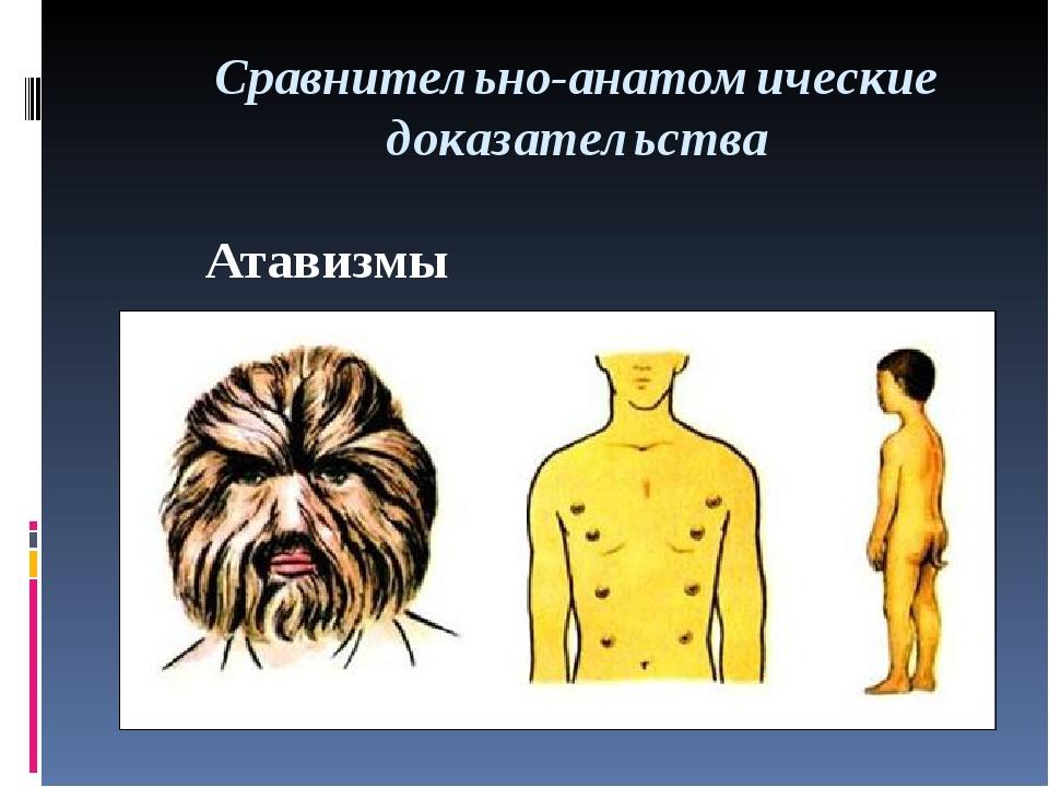Сравнительно-анатомические доказательства Атавизмы