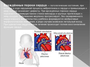 Врождённые пороки сердца— патологические состояния, при которых в ходе наруш