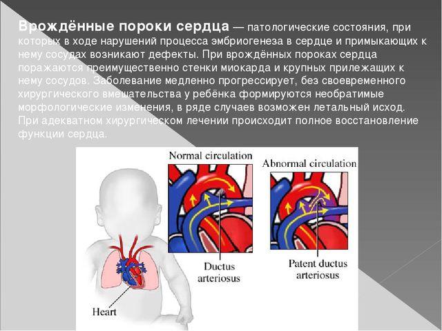 Врождённые пороки сердца— патологические состояния, при которых в ходе наруш...