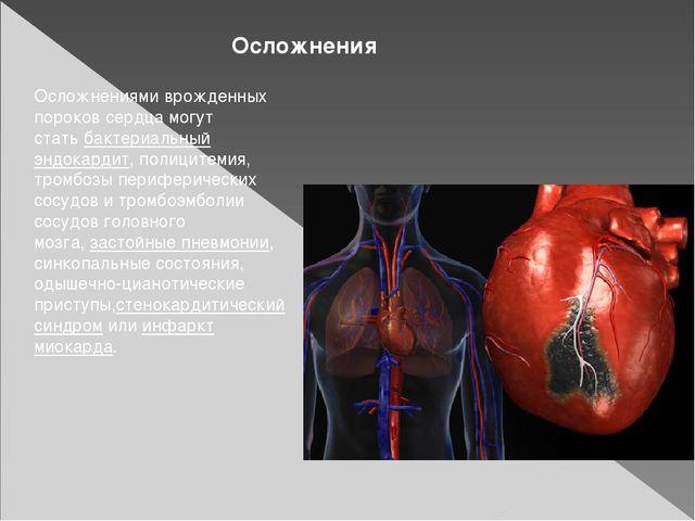 Осложнения Осложнениями врожденных пороков сердца могут статьбактериальный э...