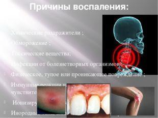 Причины воспаления: Ожоги ; Химические раздражители ; Обморожение ; Токсическ