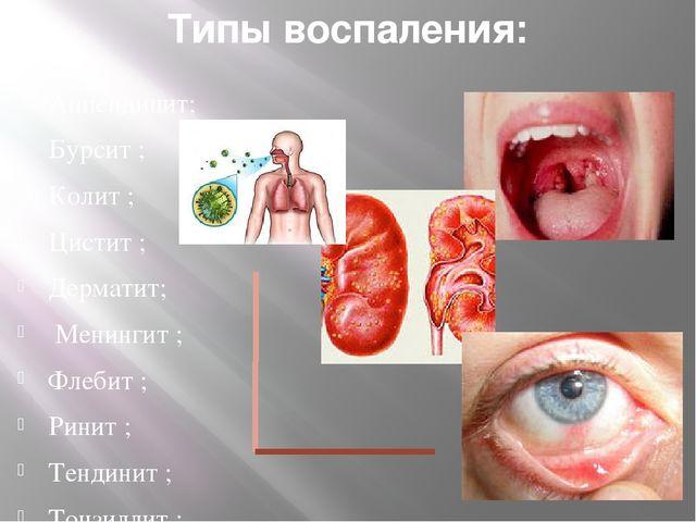 Типы воспаления: Аппендицит; Бурсит ; Колит ; Цистит ; Дерматит; Менингит ; Ф...