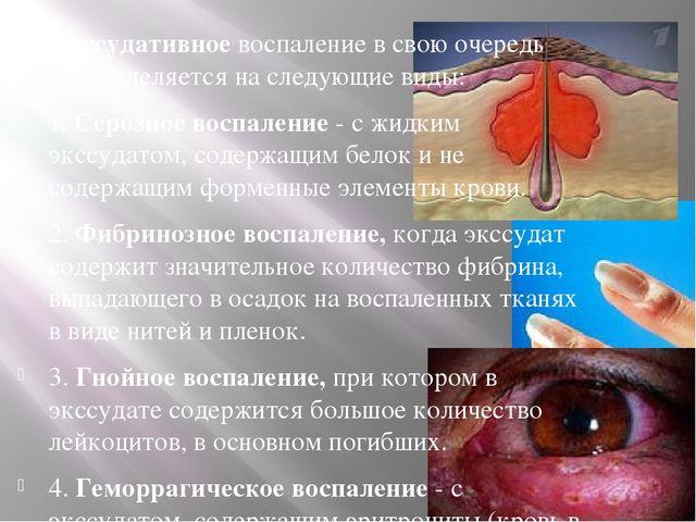 Экссудативное воспаление в свою очередь подразделяется на следующие виды: 1....