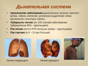 Дыхательная система Хронические заболевания дыхательных органов: бронхит, аст