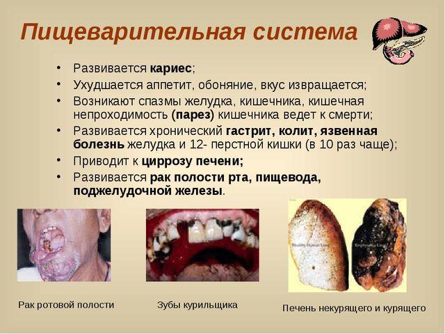 Пищеварительная система Развивается кариес; Ухудшается аппетит, обоняние, вку...