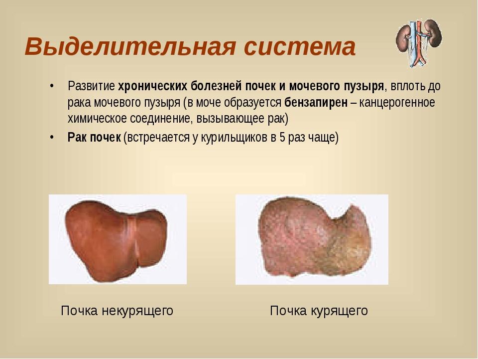Выделительная система Развитие хронических болезней почек и мочевого пузыря,...
