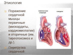 Этиология Поражение сердечной мышцы первичные (миокардиты, кардиомиопатии) и
