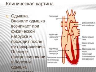 Клиническая картина Одышка. Вначале одышка возникает при физической нагрузке