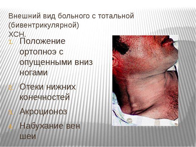 Внешний вид больного с тотальной (бивентрикулярной) ХСН. Положение ортопноэ с...