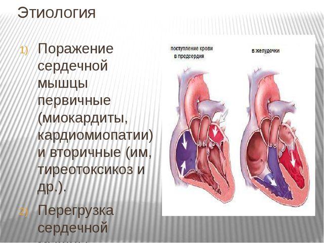 Этиология Поражение сердечной мышцы первичные (миокардиты, кардиомиопатии) и...