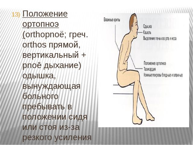 Положение ортопноэ (orthopnoё; греч. orthos прямой, вертикальный + pnoē дыхан...
