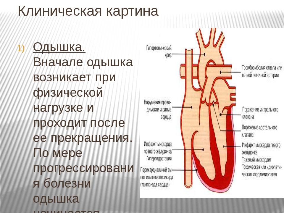 Клиническая картина Одышка. Вначале одышка возникает при физической нагрузке...
