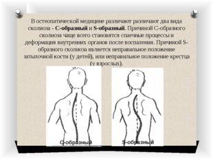 В остеопатической медицине различают различают два вида сколиоза - С-образный