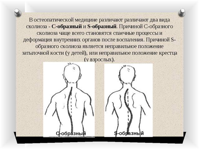 В остеопатической медицине различают различают два вида сколиоза - С-образный...