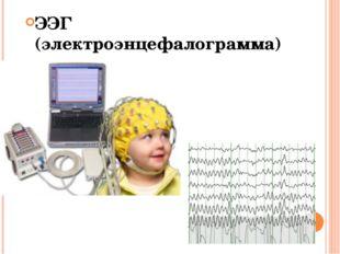 ЭЭГ (электроэнцефалограмма)