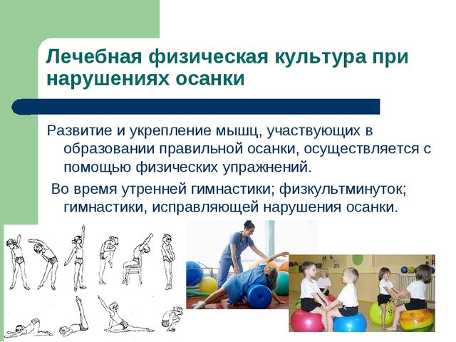 Лечебная физическая культура при нарушениях осанки Развитие и укрепление мышц...