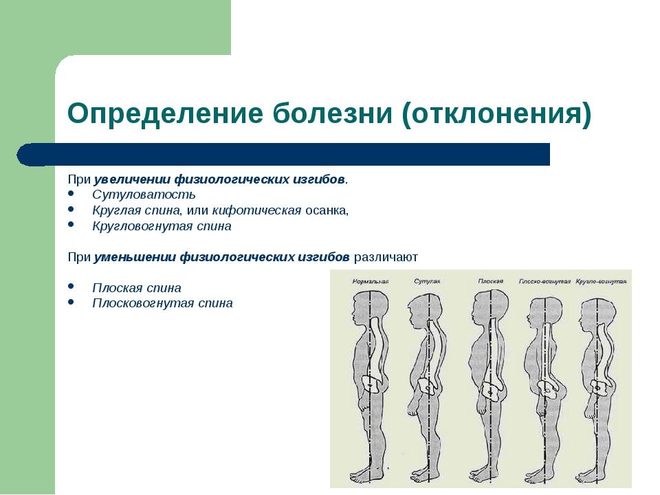 Определение болезни (отклонения) Приувеличении физиологических изгибов. Суту...