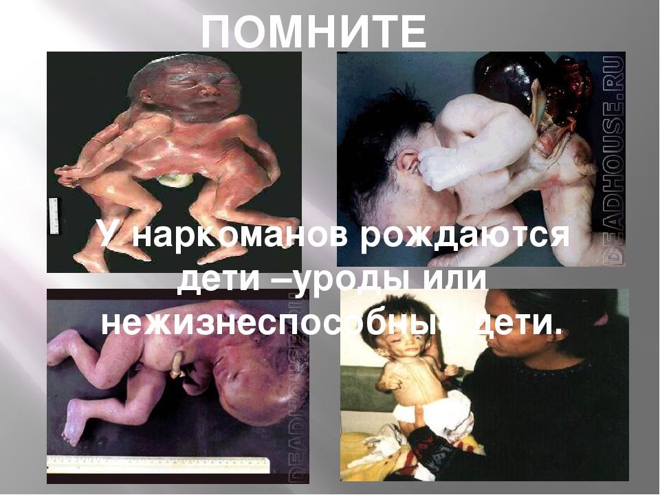 ПОМНИТЕ У наркоманов рождаются дети –уроды или нежизнеспособные дети.