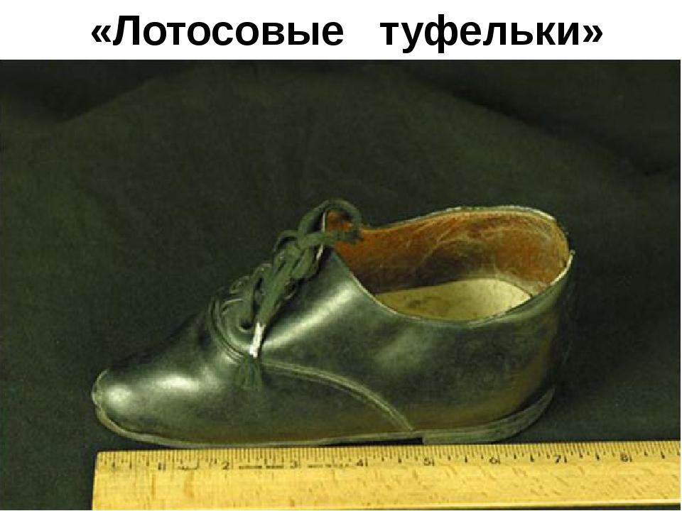«Лотосовые туфельки»