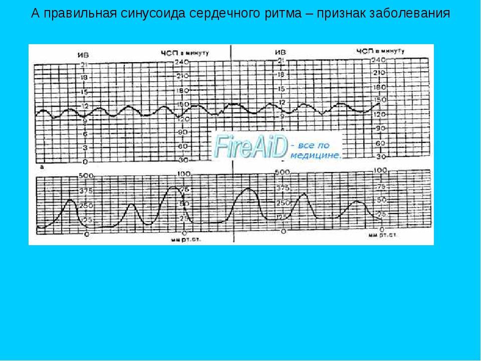 А правильная синусоида сердечного ритма – признак заболевания