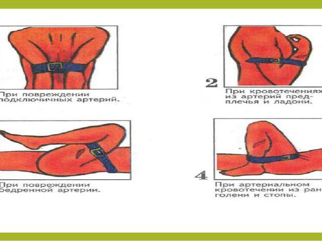 1.иык алды жарасы кезінде — артерияны иықтың ішкі жағынан басады; 2. балтырд...