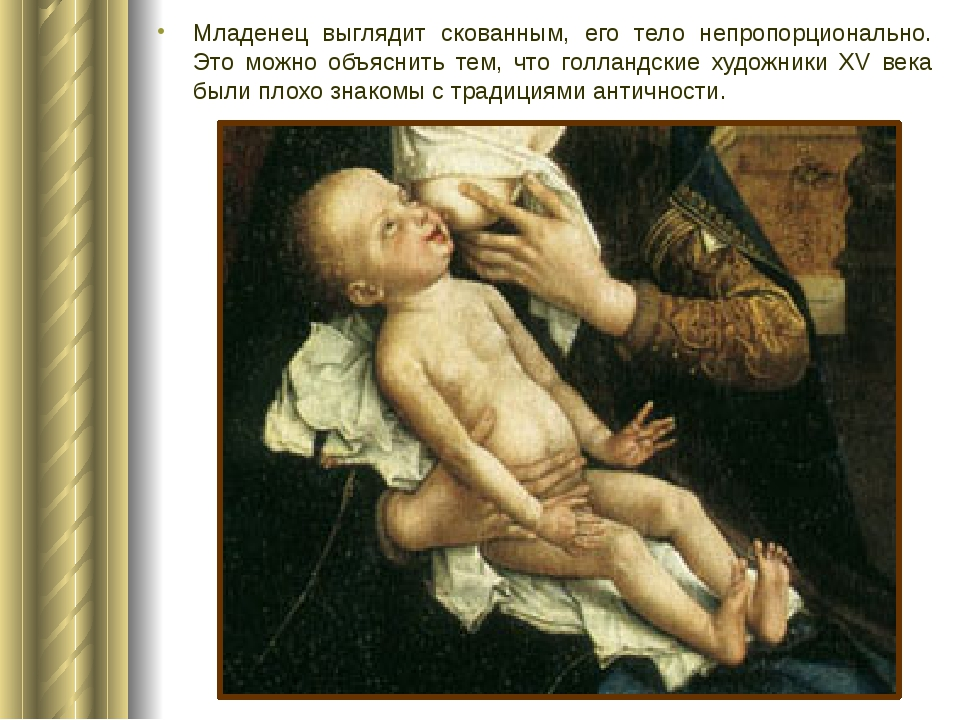 Младенец выглядит скованным, его тело непропорционально. Это можно объяснить...