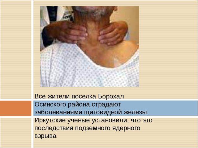 Все жители поселка Борохал Осинского района страдают заболеваниями щитовидной...
