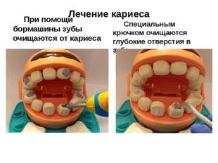 Лечение кариеса При помощи бормашины зубы очищаются от кариеса Специальным