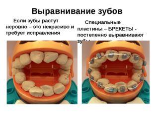 Выравнивание зубов Если зубы растут неровно – это некрасиво и требует исправ