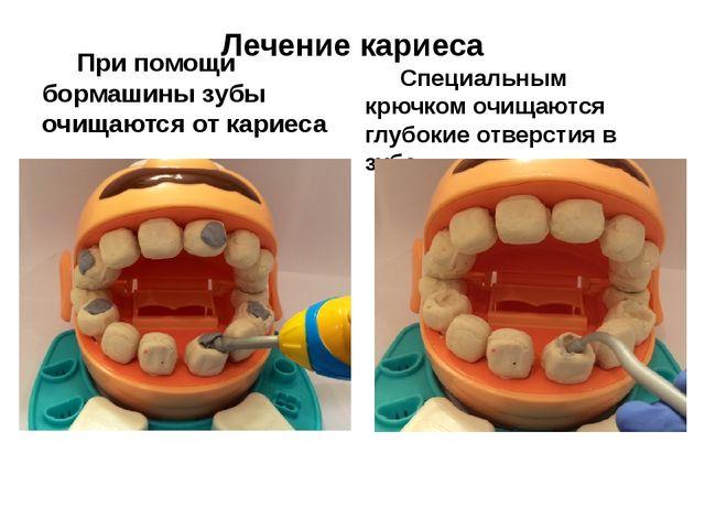 Лечение кариеса При помощи бормашины зубы очищаются от кариеса Специальным...