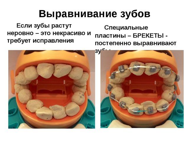 Когда выпрямлять зубы детям