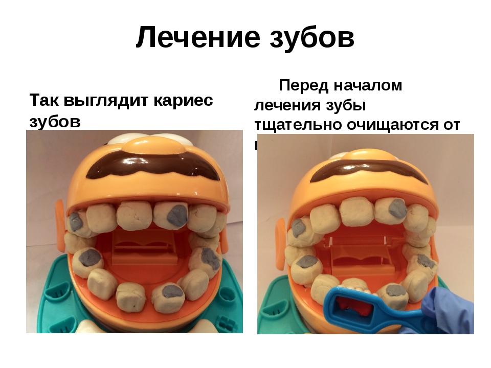 Лечение зубов Так выглядит кариес зубов Перед началом лечения зубы тщательно...