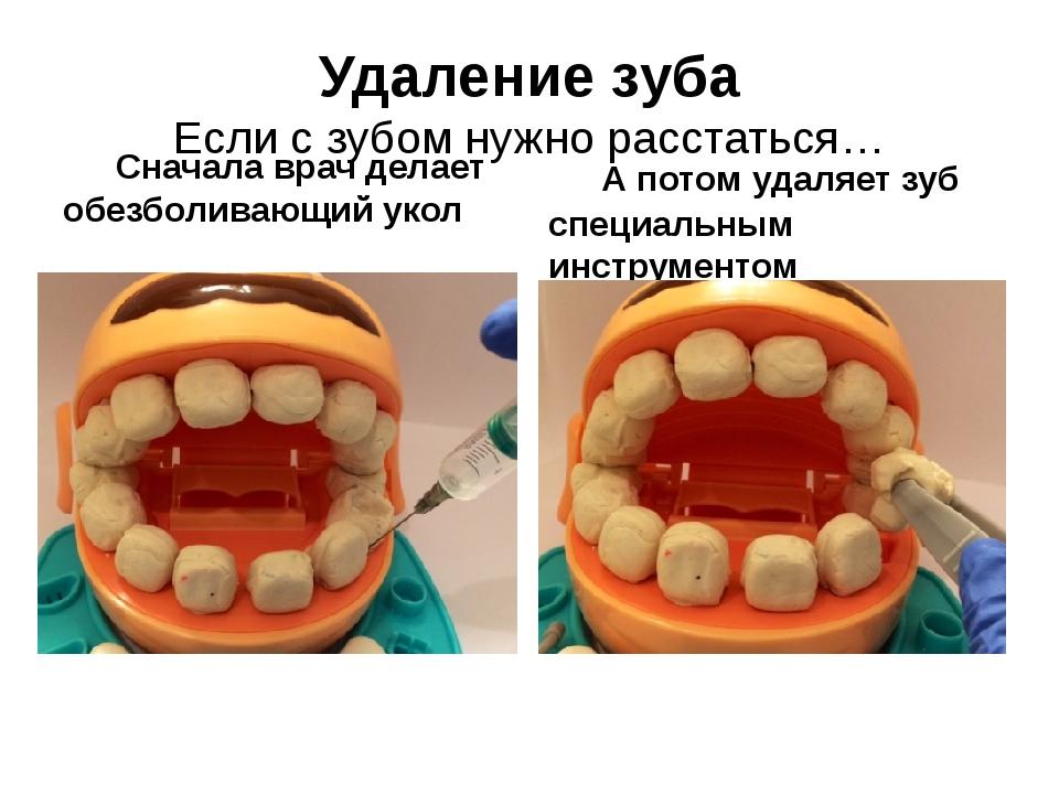 Удаление зуба Если с зубом нужно расстаться… Сначала врач делает обезболиваю...