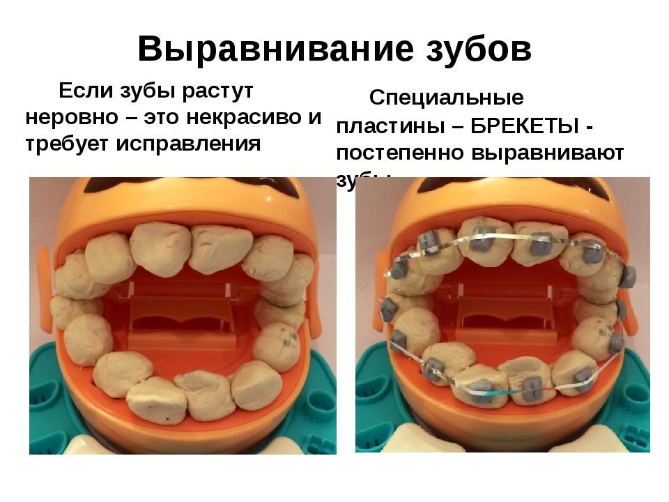 Выравнивание зубов Если зубы растут неровно – это некрасиво и требует исправ...