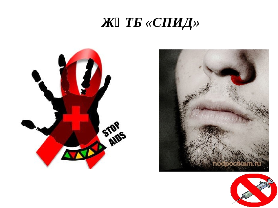 ЖҚТБ «СПИД»