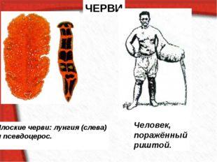 ЧЕРВИ Плоские черви: лунгия (слева) и псевдоцерос. Человек, поражённый риштой.