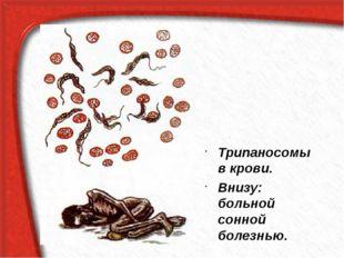 Трипаносомы в крови. Внизу: больной сонной болезнью.