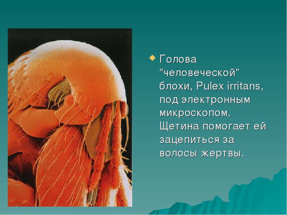 """Голова """"человеческой"""" блохи, Pulex irritans, под электронным микроскопом. Щет..."""