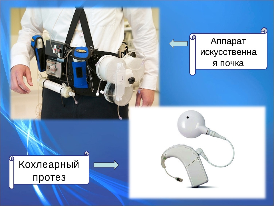 Аппарат искусственная почка Кохлеарный протез