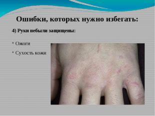 Ошибки, которых нужно избегать: 4) Руки небыли защищены: Ожоги Сухость кожи